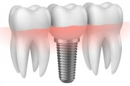 Implante