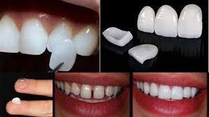 lente-dentaria